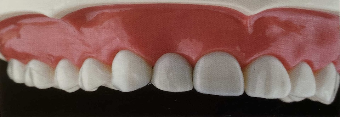 neue Zähne after 1080