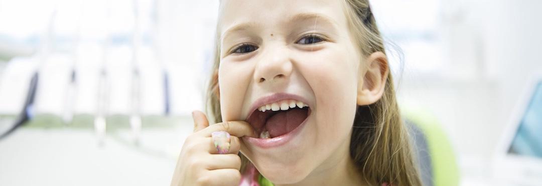 Kinderzähne nacher 1080